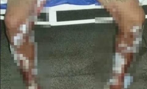 """Em Cerejeiras, traficantes jogam gasolina e ateiam fogo em """"cliente"""" de 29 anos por dívida de drogas"""