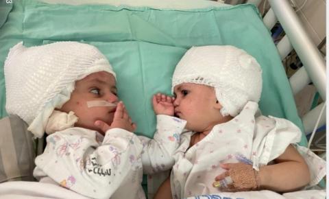 Gêmeas siamesas que nasceram unidas pela parte de trás da cabeça em Israel conseguem finalmente se ver após cirurgia