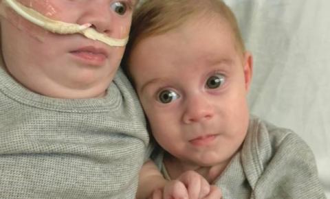 Gêmeas siamesas de Rondônia se reencontram dez meses após cirurgia de separação